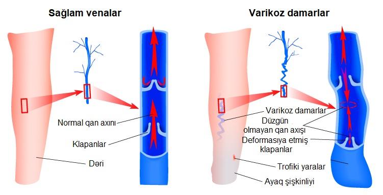 Ayaq damarlarının genişlənməsi