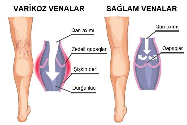 ayaqda genislenmis damarlar