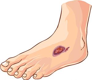 Трофическая язва — Oсложнения варикозной болезни
