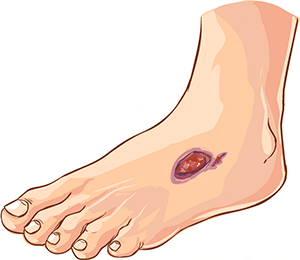 Trofik Yaralar – Varikoz Damarlarının Fəsadları